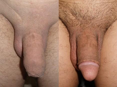 Mužská obřízka (odstranění předkožky penisu)