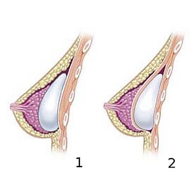Umístění implantátu v prsu